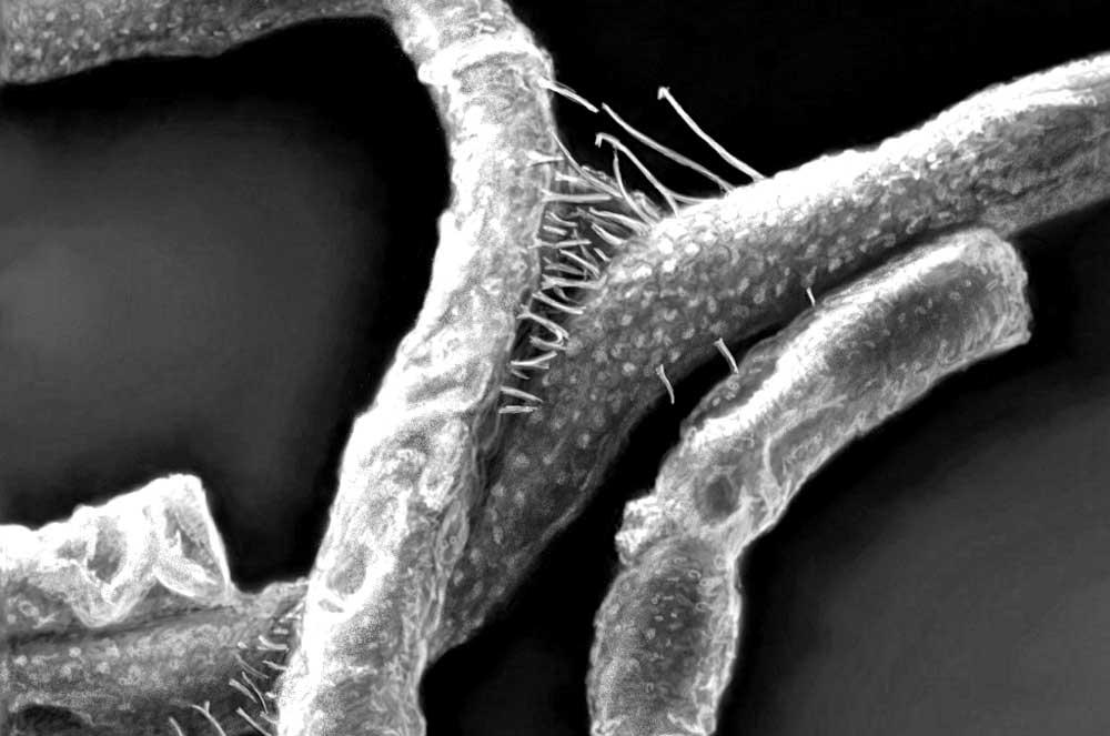 anthrax-bacillus-anthracis